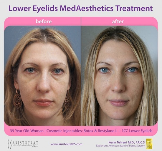 before-after-restylane-botox