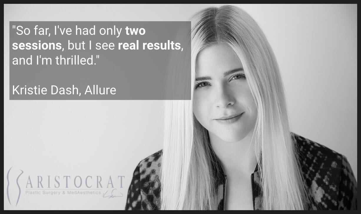 Patient testimonial on laser hair removal