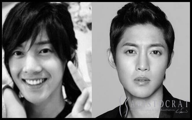 17 U S And Korean Superstars Who Ve Had Plastic Surgery Young Only To Come Out Firing Aristocrat Plastic Surgery